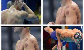 على مدار دورتين الحجامة اهم صرعات الأولمبياد